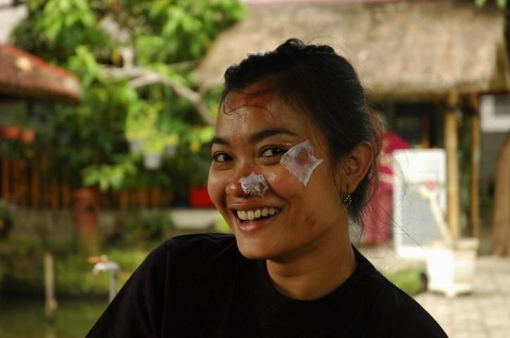 ini nih muka saya setelah jatuh dan pulang dari rumah sakit hehe. Yang ditutupin perban lukanya lumayan dalam :)